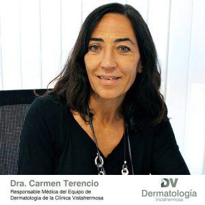 Conoce todo sobre la dermatitis de la mano de la Dra. Carmen Terencio Alemany