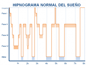 Hipnograma_Normal_Liron