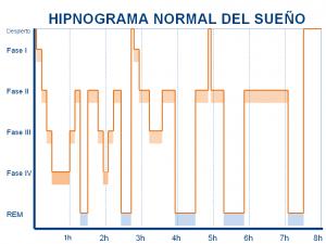 Hipnograma_Normal_Liron