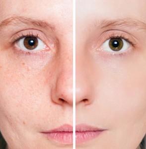 Cómo mejorar las manchas en la piel